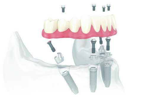 Rendered image of all on 4 from Ranches Family Dental in Eagle Mountain, UT