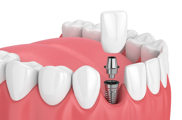 A rendering of the dental implant procedure at Ranches Family Dental